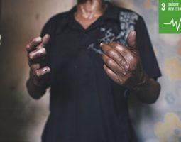 Parar a transmissão de doenças transmissíveis como AIDS, malária, tuberculose e doenças negligenciadas